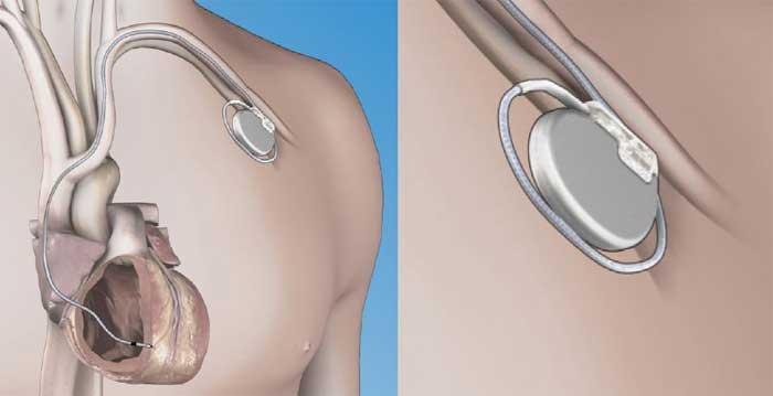 illustration d'une greffe de stimulateur cardiaque
